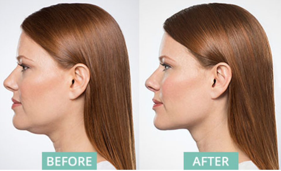 chin treatment before after